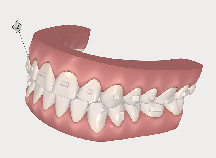 INVISALIGN - symulacje 3D leczenia